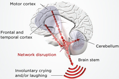 pba-disconnect-emotion-mood